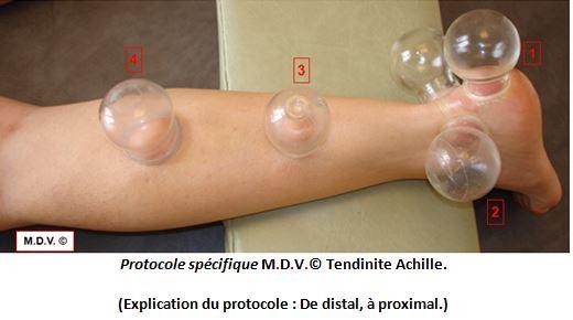 Protocole spécifique Médecine des Ventouses, pathologie tendinite Achille
