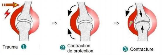 le choc physique cause de contracture