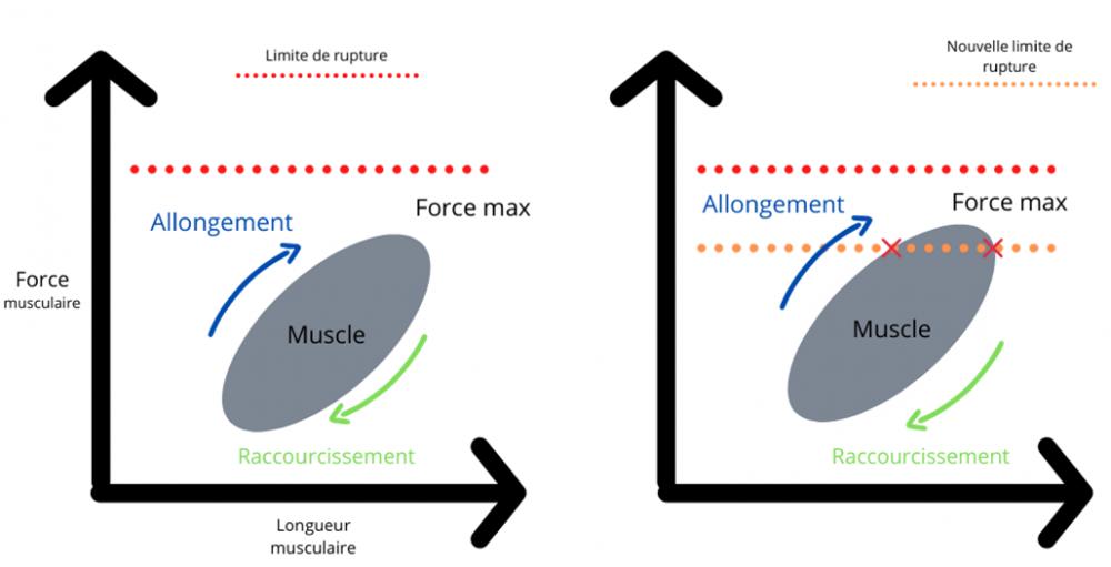 Mécanisme général des blessures musculosquelettiques